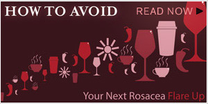Avoid Rosacea Flare Ups