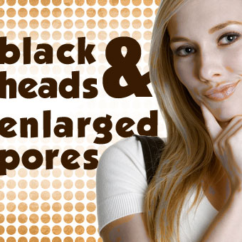 Blackheads and Enlarged Pores