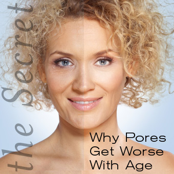 Why Pores Get Worse With Age