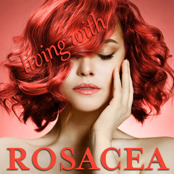 Living with Rosacea