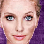 Dealing with Melasma