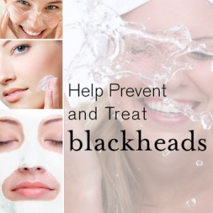 Best Ways to Help Prevent and Treat Blackheads